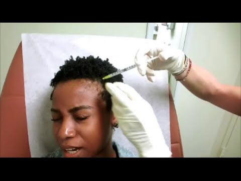 What To Expect During an Dermatologist Visit for CCCA Alopecia/Alopecia and MY Alternative Treatment