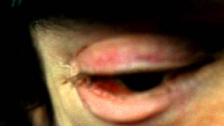 HadynsTVDoc: No more disfigurement