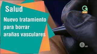 Azul láser bolígrafo vasculares arañas de con claro para tratamiento