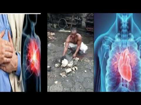 Fast Natural Remedy To Reduce High Blood Pressure With Coconut Water Therapy
