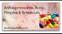 hqdefault - Do Antidepressants Cause Acne