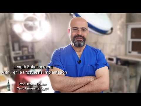 Penile Length enhancement with Penile Prosthesis Implantation
