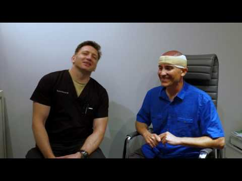 ARTAS: Patient Experience. Case 13. Best Hair Transplant Florida Miramar
