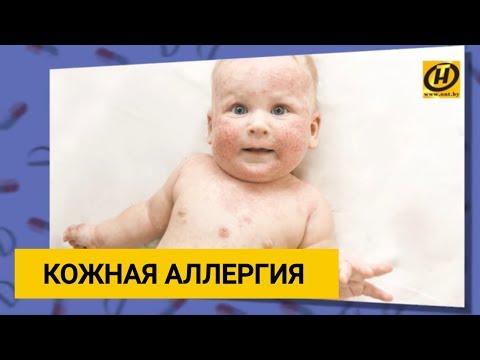 Лечение кожной аллергии у детей