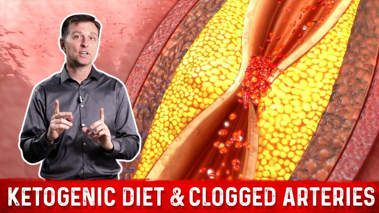 will keto diet help blocked arteries