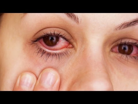 how-to-instantly-relieve-itchy/irritated-allergy-eyes!!