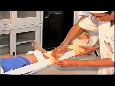 KNTLS  Bất động gẫy xương đùi bằng 3 nẹp gỗ   YouTube