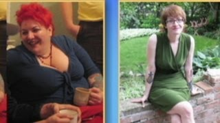Woman Loses 200 Pounds, Now Miserable