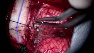 Microsurgical treatment of tentorial dural fistulas causing thalamic venous hypertension: 2...cases