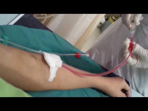 HEMODIALYSIS PROCEDURE - PROSES CUCI DARAH HEMODIALISA