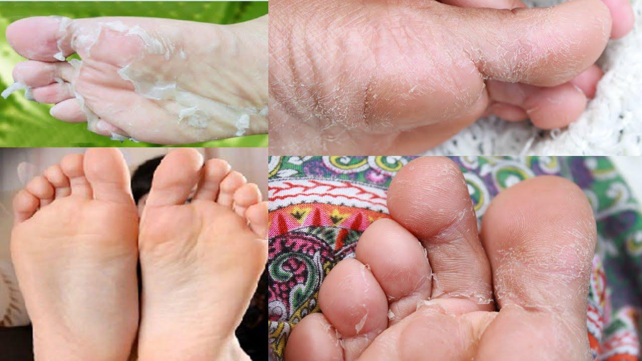 Como tener pies hermosos y sin grietas youtube - Como mantener los pies calentitos ...