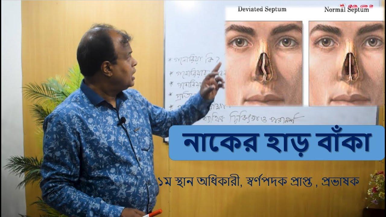 নাকের হাড় বাঁকা - DNS - DR ABDUL MANNAN