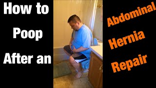 How to poop after an abdominal hernia repair.
