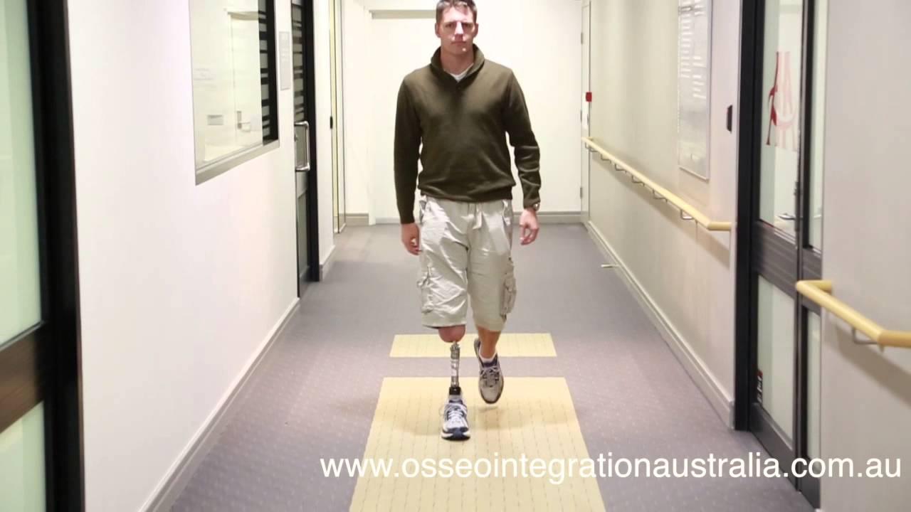 Osseointegration Post Op Walking Again Youtube