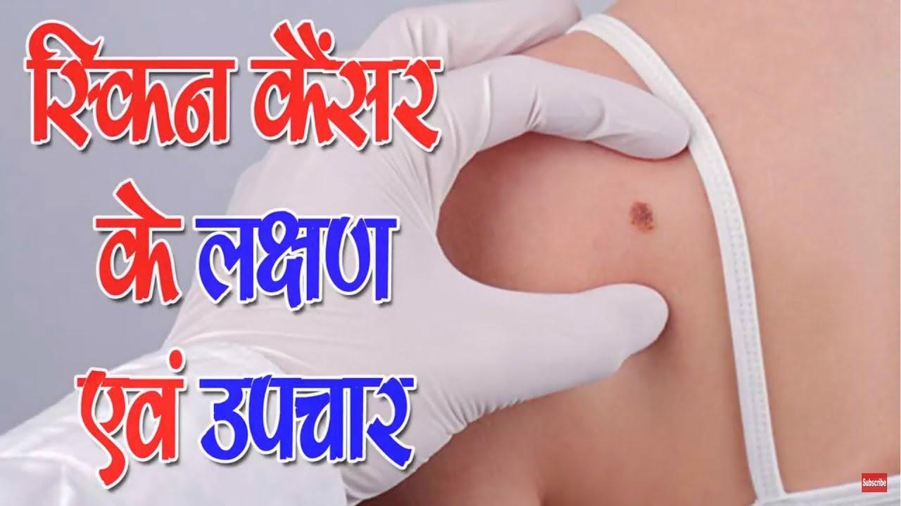 À¤¸ À¤• À¤¨ À¤• À¤¸à¤° À¤• À¤²à¤• À¤·à¤£ À¤à¤µ À¤‰à¤ªà¤š À¤° Skin Cancer Symptoms And Treatment Youtube