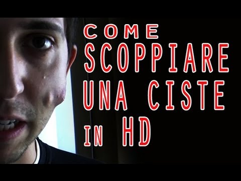 Come Scoppiare Una Ciste In Hd How To Explode A Cyst In