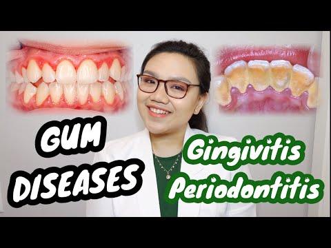 GUM DISEASE: Gingivitis and Periodontitis 🦷 Namamagang gilagid, masama ba? | Dr. Bianca Beley