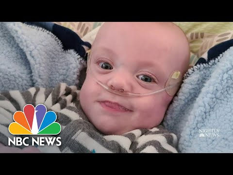 World's Most Premature Baby Beats The Odds, Celebrates First Birthday