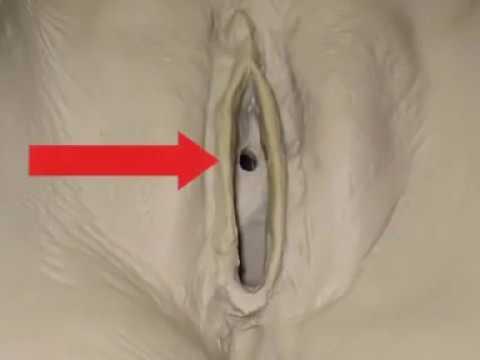 Катетеризация мочевого пузыря катетером Фолея
