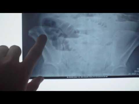 Hình ảnh x quang của tắc ruột