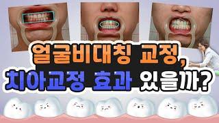 안면비대칭 교정하면 치아교정 효과 있나요?( 얼굴비대칭…
