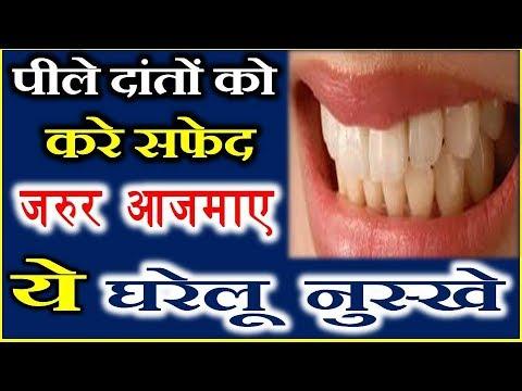 Home Remedies For Yellow Teeth ज न ए प ल द त क