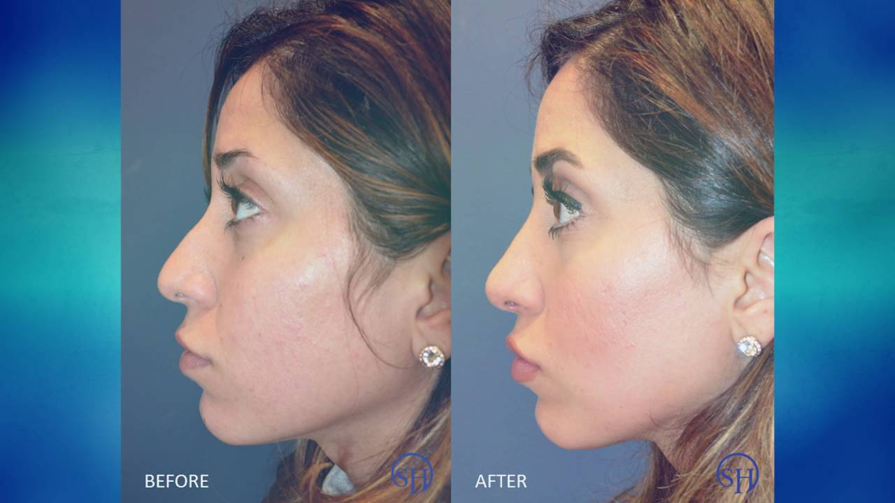 rhinoplasty nose job experience - before & after - youtube