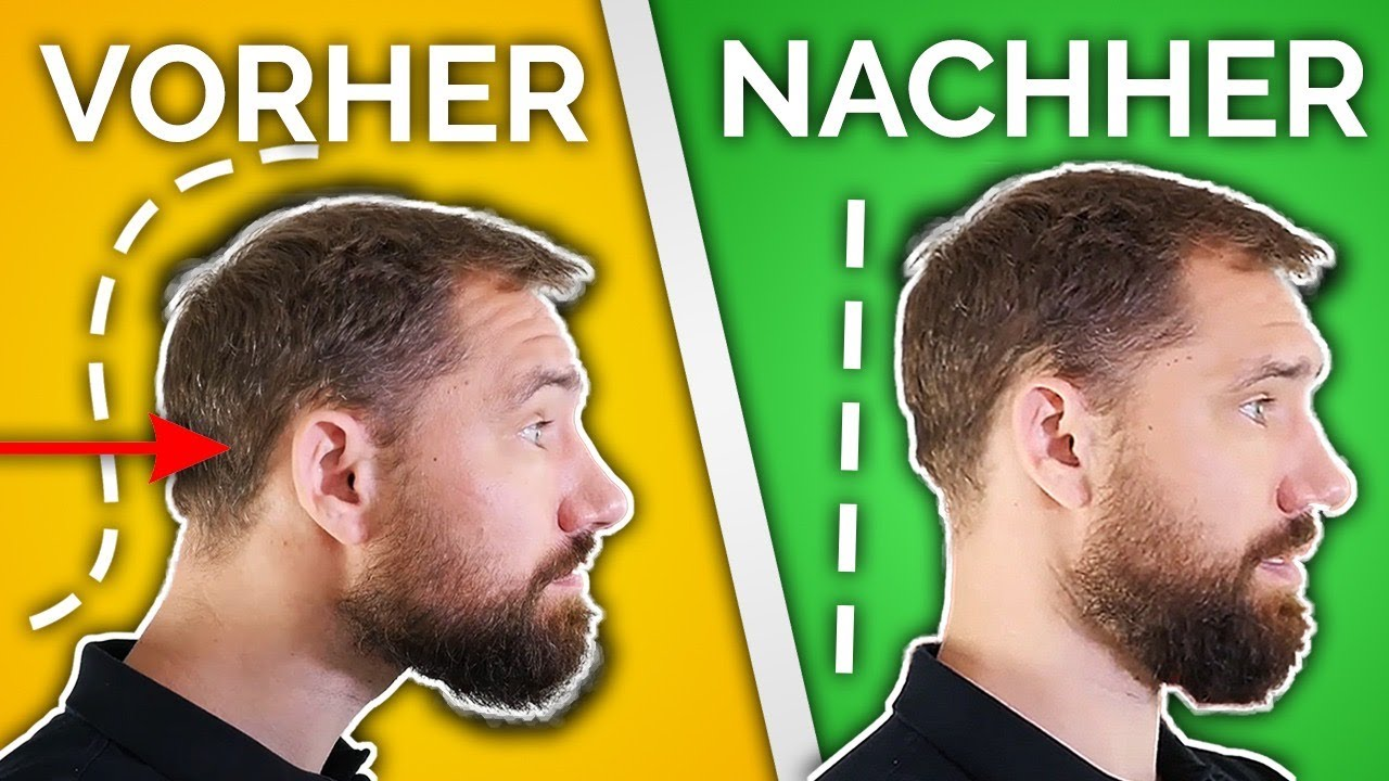 Wie Du deinen Geierhals loswirst (Neue Methode)