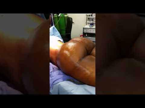 Very Large Buttock - Over 2000 cc of Fat Per Buttock