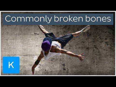 Most commonly broken bones in the Human body  Kenhub