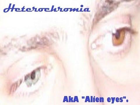 MY REAL EYES [Heterochromia]