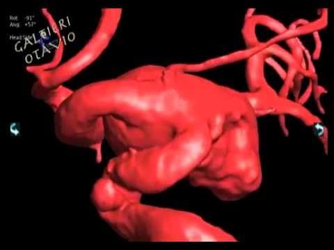 Arteria carotida interna - YouTube