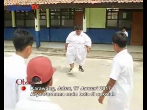 Baru Pulang Dari RSHS, Perempuan Obesitas Asal Karawang Meninggal