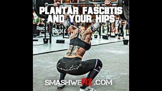 Plantar Fasciitis and your Hips | Trevor Bachmeyer | SmashweRx