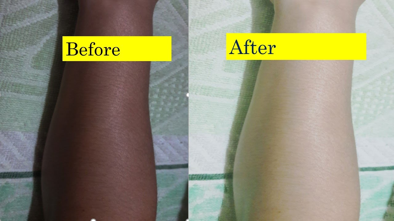 How To Lighten Face And Body Skin Color In 5 Days Magical