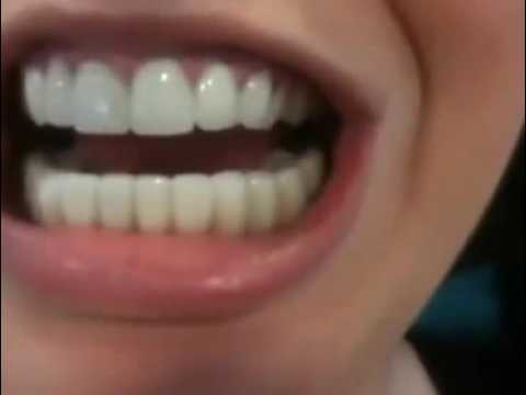 Snap on Smile online video cutter com 1