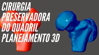 Cirurgia Preservadora do Quadril - Planejamento em software 3D