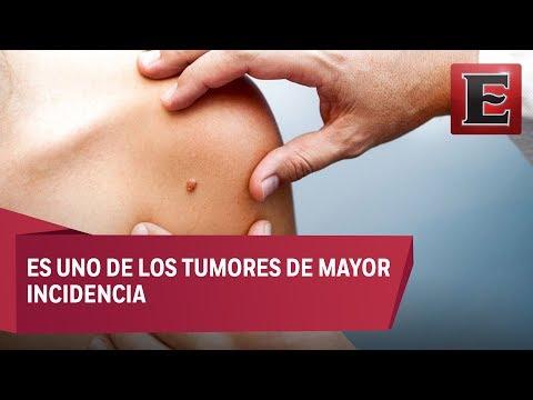 Cáncer de piel: Causas, síntomas y tratamiento