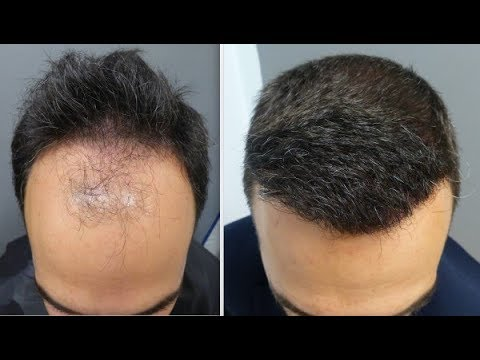 3101 Grafts.FUE Techniq.Early regrowth at 5 months,good 10 months result.Injertocapilar.com.732/2016
