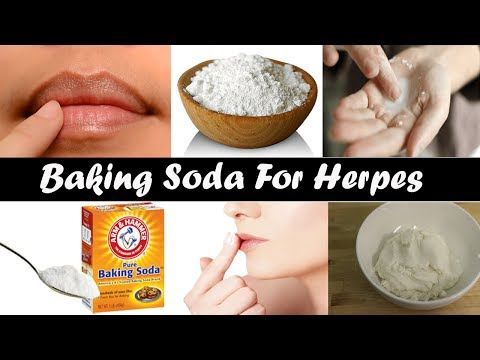 How Baking Soda Can Be A Helping Agent In Herpes Treatment? Herpes Cure With Baking Soda