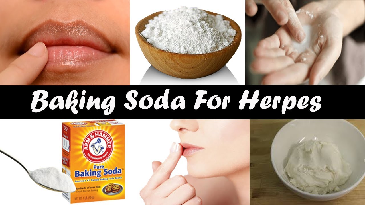 How to cure herpes