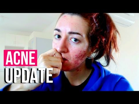 ACNE UPDATE + I GOT MY IMPLANON REMOVED! | Jess Bunty