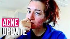 hqdefault - Contraceptive Implant Good Acne