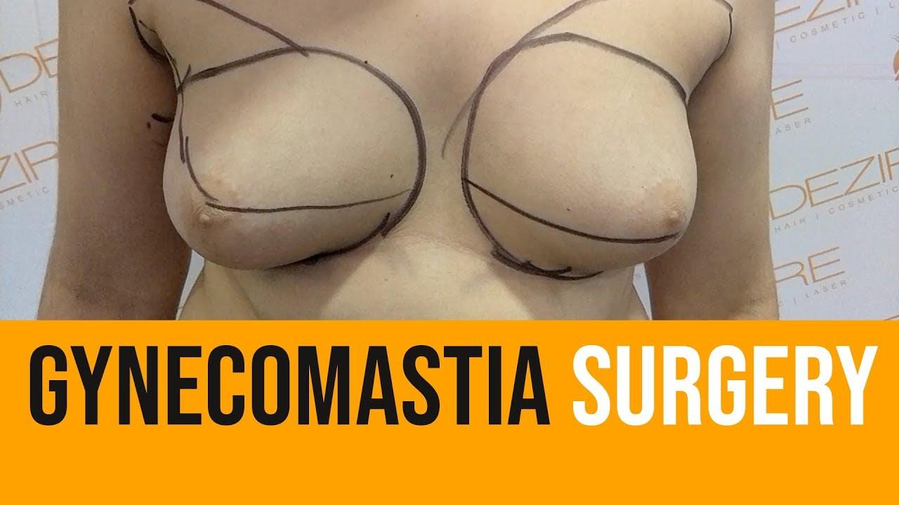 Surgery big boob pay per view — pic 13