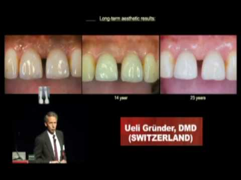 USC Dentistry: International Periodontics & Implant Symposium 2010 (U. Gründer)