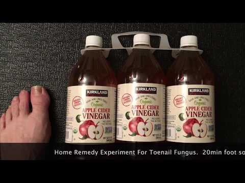 toenail-fungus-30-day-experiment-using-apple-cider-vinegar-soak