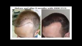7 Hair Transplant Hairline FUE Results in 2014 - HDC Hair Clinic
