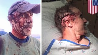 MAN ATTACKED BY GRIZZLY BEAR - TODD ORR  Story of Survival!
