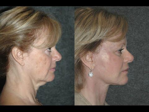 mini-facelift-russian-woman-|-usa-facelift-expert-dr-jacono