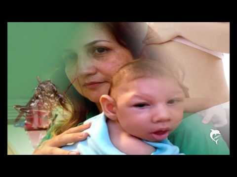 Zika Virus effects on Babies